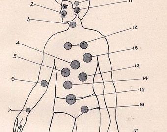 Sick Man Diagnoses Of Men's Diseases Edwardian Era Antique Vintage Medical Diagram To Frame