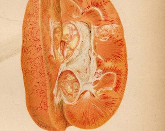 Liver Complaint Bright's Kidney Disease Human Anatomy 1908 Vintage Medical Lithograph Chart