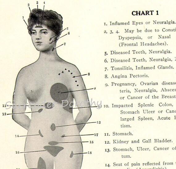 Woman's Diseases Medical Chart Of Ailments To Frame 1904 Human Anatomy Edwardian Era