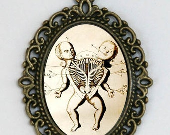 Siamese Twins necklace Victorian Medical Drawing anatomy psychobilly gothic punk odd