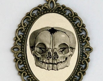 Conjoined Twin SKULL necklace Victorian Medical Drawing necklace anatomy psychobilly gothic punk odd