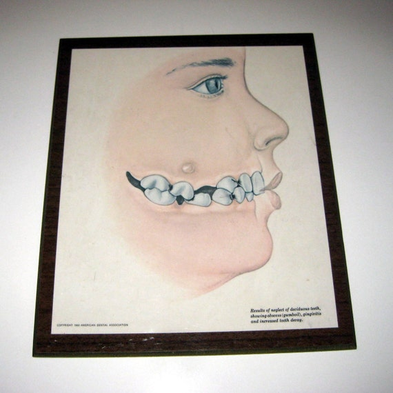 RESERVED FOR MNBRIE Vintage 1960s Dental Office Wall Decor
