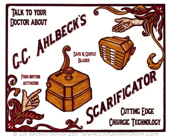 G.C. Ahlbeck's Scarificator bloodletting woodcut print 20x24
