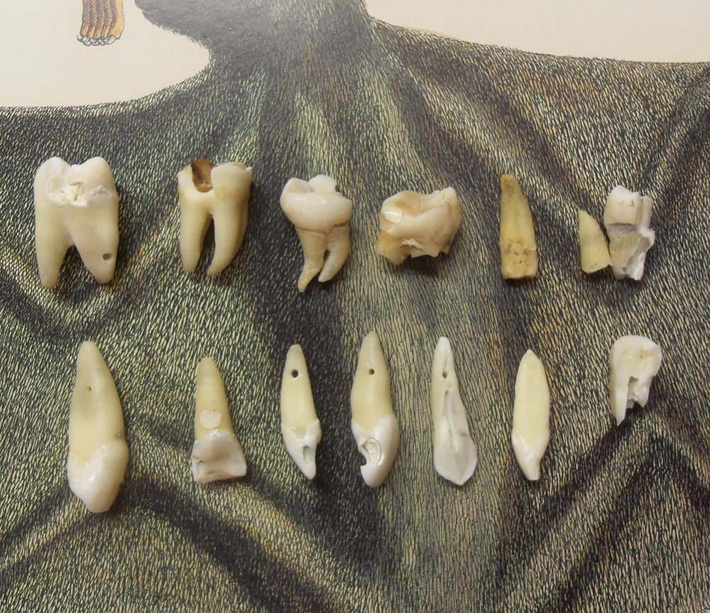 Real human teeth - photo#11