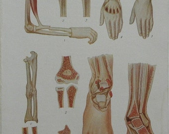 1919 Full color Litho Print of Fractures of the Bones