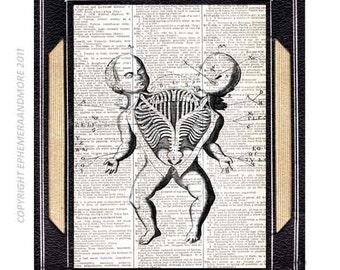 SIAMESE TWINS antique drawing illustration conjoined twins art print on vintage book page doctor medical science pathology 8x10, 5x7, 4x6