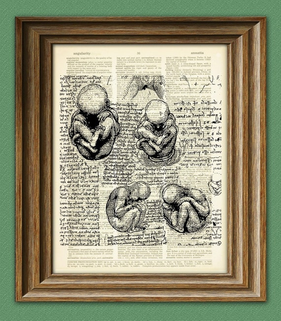 Study of Fetus in the Womb from Leonardo Da Vinci on vintage dictionary page book art print Davinci