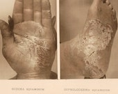 Photographic Illustration Hand Colored From the Book on Skin Diseases 1887