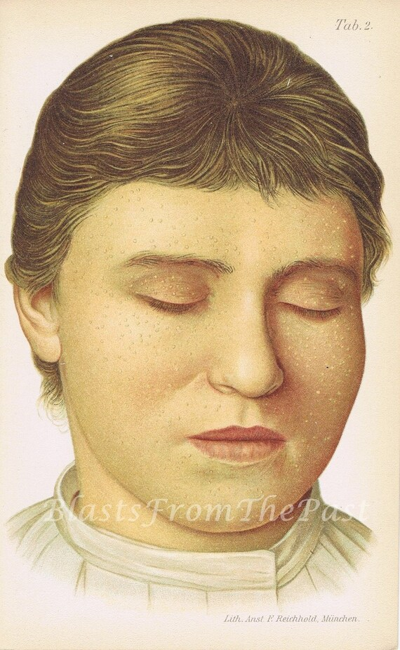 1899 MEDICAL Antique Chromolithograph, '18 year old girl', Unusual, Bizarre, over 100 years old, Clinical, Doctor, Unique, Medical Print