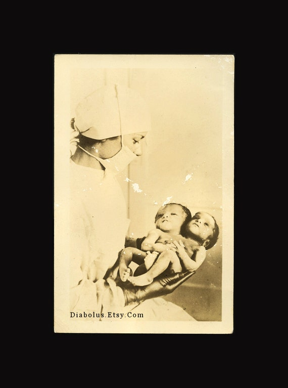 Original Vintage RPPC Photo / Nurse Holds Siamese Conjoined Twins
