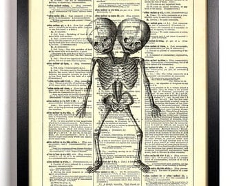 Siamese Twins Skeleton, Home, Kitchen, Nursery, Bath, Office Decor, Wedding Gift, Eco Friendly Book Art, Vintage Dictionary Print 8 x 10 in.