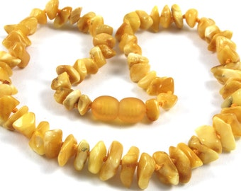 Effective Healing Baltic Amber Baby Teething Necklace White Milky Beads