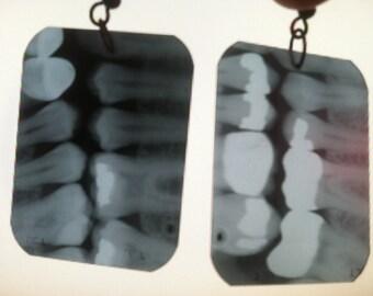 Dental X-Ray Earrings