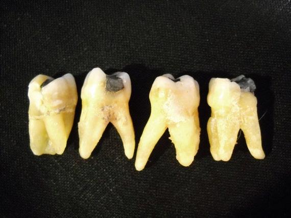 Real human teeth - photo#25