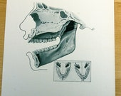 Vintage Dental Illustration from Atlas of the Mouth 1950s for Art Framing Collage Mixed Media Plate 43