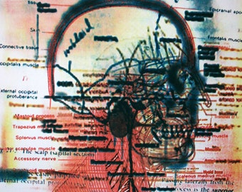 Medical Art, Scalp, Hand Pulled Lithograph