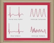 Cross-stitch pattern: EKG arrhythmias
