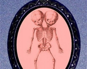Conjoined Twins Skeleton Pink Punk Necklace Pendant Sideshow Freaks Circus Freakshow