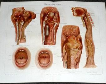 1894 mouth disease original antique anatomy lithograph