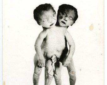Rare Original Vintage Photo of Conjoined Twins