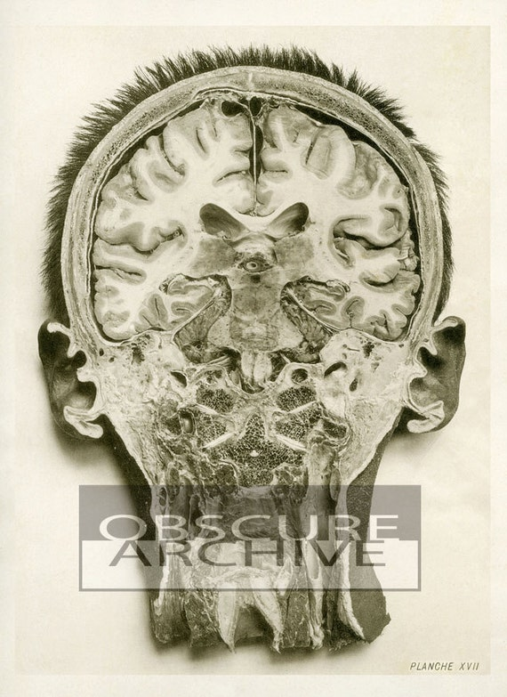 THE SKULL - An Interior View -  haunting print of a bisected head - 1890s medical photo