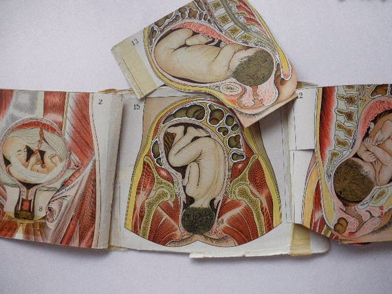 RARE obstetrics 1916 overlay color Medical CHARTS from antique medical book - baby, birth, women