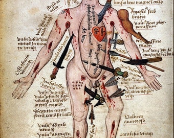 "Vintage Medical Illustration ""Wound Man"" Antique Anatomical Diagram - Medieval Gothic Spooky Surreal Skeleton"
