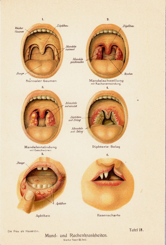Throat Anatomy Tonsils Image Collections Human Body Anatomy