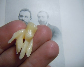 Tooth oddity-Premolars weird rooth