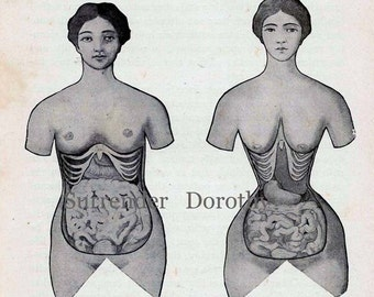 Corset Disfigurement Human Female Anatomy Vintage Medical Chart 1920s Illustration To Frame