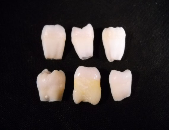 Reserved for Burntalmond, 6 Premium Real Human Teeth Taxidermy Bone Teeth Molar Tooth Bones