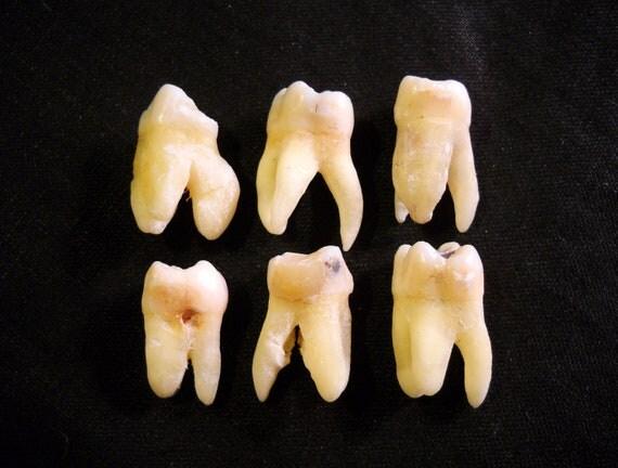 Real human teeth - photo#22