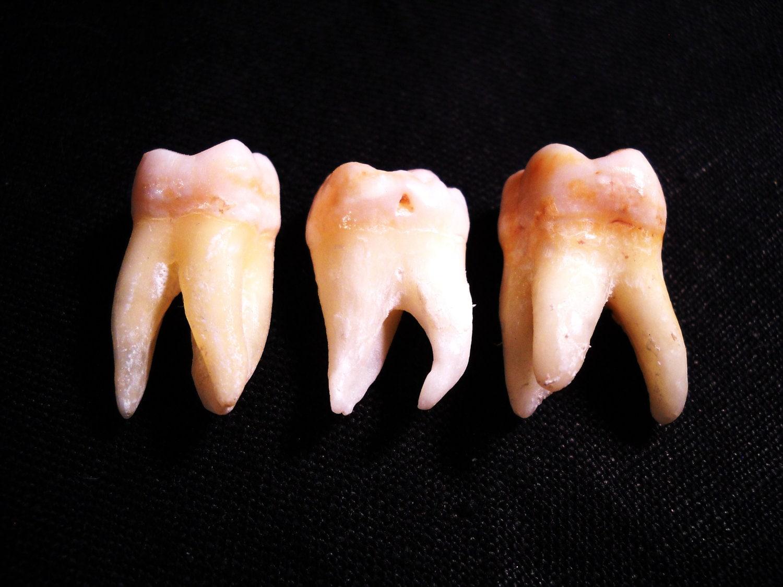 Real human teeth - photo#1