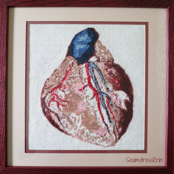 Anatomical Heart Needlepoint Kit - Pattern, Canvas, Needle, and Hand-Dyed Yarn