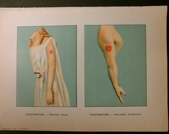 1912 original page - MEDICAL CHART from antique medical book - color, vaccination