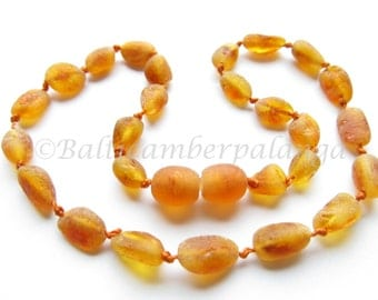 Baltic Amber Baby Teething Necklace, Raw Cognac Color Olive Form Beads