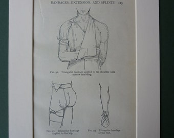 Vintage 1922 First Aid Matted Print - Nursing - Medical - Doctor - Nurse - Arm Sling - Diagram - Bandages - Bandaged - Antique - Chest