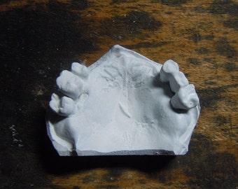Plaster model of hight detailed human gums III.