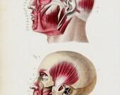 1843 Antique ANATOMY print, NEUROLOGY, NEUROSURGERY, original antique 170 years old print