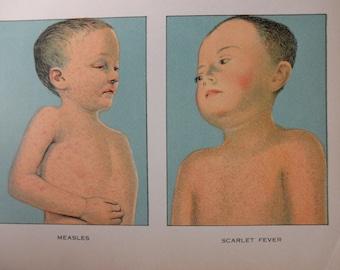 1912 original page - MEDICAL CHART from antique medical book - color, measles, scarlet fever