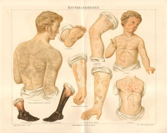 1890 Skin Diseases or Dermatosis Original Antique Chromolithograph