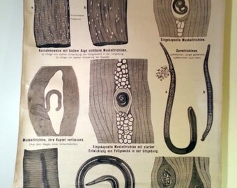 1950s 1940s Worm science chart trichinen german classroom scientific zoology biology