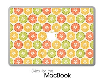 "Vintage Buttons Skin for the MacBook 11"", 13"" or 15"""