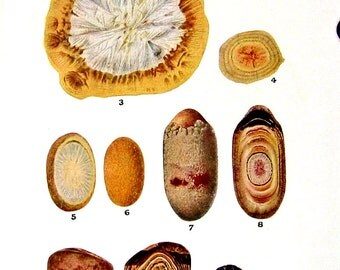 Medical Print - Gallstones - 1951 Vintage Book Page from Medical Dictionary - 9.5 x 6 Colored Print