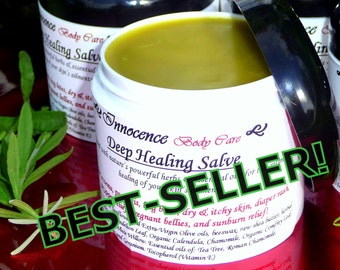 Healing Salve For: Severe Dry Skin, Eczema, Bug Bites, Rash, Itch Relief, Burns. Powerful 7-Herb Formula.Chemical-Free, BEST-SELLER