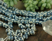 O | O Blue Sky: Blue Round Bone Beads / 7x5mm, 45+ beads / Spring Stained Indian Cow Bone Beads/ Craft, Jewelry Making Supply, Supplies