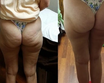 Cellulite Firming Kit // See Results In 2-3 Days // Amazing Natural Products