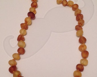 """Amber Teething Necklace - 12.5"""" in Raw Rounded Honey, Caramel, and Cognac Alternating"""