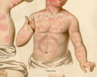 Large 1890s Human Anatomy Print, SKIN DISEASES colour chromolithograph