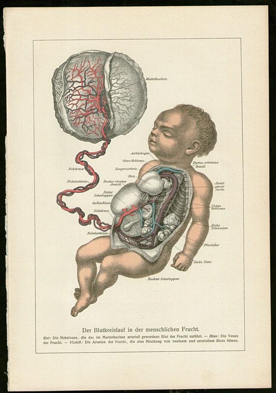 bebé de 1880s en antigua litografia grabado útero feto   Etsy